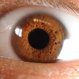Photo of Amber Eyes Source: Mcorrens via wikimedia commons. This eye color is due to a low concentration of melanin and a very high concentration of lipochrome deposited in the cells of the iris.  True amber eyes are extremely rare. Most people have only seen only about a couple of amber-eyed people in their entire life. Amber eye color is as rare as green eyes and potentially rarer