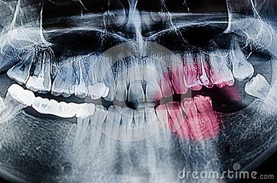 Painful teeth concept - Panoramic dental X-Ray, teeth and head radiography