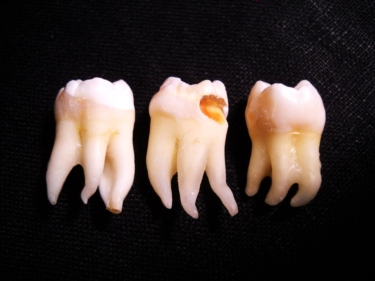 the 25+ best human teeth ideas on pinterest | teeth images, teeth, Human Body