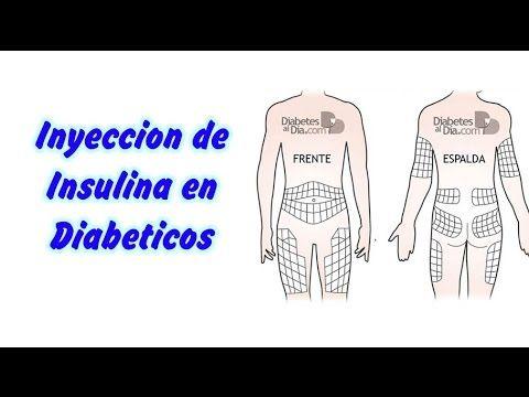 Inyeccion de Insulina Diabetes. http://enfermedades-informacion.blogspot.com/  Insulina, Inyeccion de Insulina, Diabetes, sintomas de la diabetes, sintomas de diabetes, Que es la Diabetes, diabetes gestacional, diabetes sintomas, dieta para diabeticos, dietas para diabeticos, sintomas diabetes, sintomas diabetes, type i diabetes, diabetes causas.