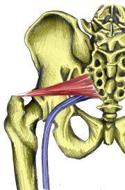 Piriformis-syndrome www.ctnaturalbalance.com