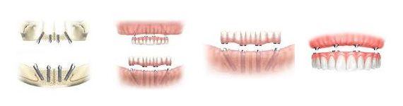 #Sofort #Kauen mit #KIPP #Implantat ? http://www.zahn-implantate-berlin.de/deutsch/news/kipp-implantat.html