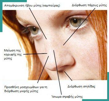 Κατάλληλοι υποψήφιοι και υποψήφιες για πλαστική μύτης θεωρούνται τα άτομα εκείνα τα οποία έχουν: 1)  Μία μύτη με άσχημο σχήμα ή που δεν ταιριάζει στο πρόσωπό τους. Το πρόβλημα μπορεί να υπάρχει εκ γενετής ή μετά από τραύμα ή κάποια ασθένεια. 2) Αναπνευστικά προβλήματα, που οφείλονται στην κακή κυκλοφορία του αέρα μέσα στην μύτη (κατάλληλοι υποψήφιοι για διαφραγματοπλαστική). Τα προβλήματα αυτά μπορεί να συνδυάζονται με άσχημο σχήμα στη μύτη. 3) Ρεαλιστικές προσδοκίες όσον αφορά στο τι μ