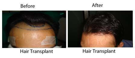 TheNewYouClinic offers Best Hair Transplantation both FUT & FUE in Bangalore, India at affordable prices. Details: http://www.thenewyouclinic.com/gallery.html