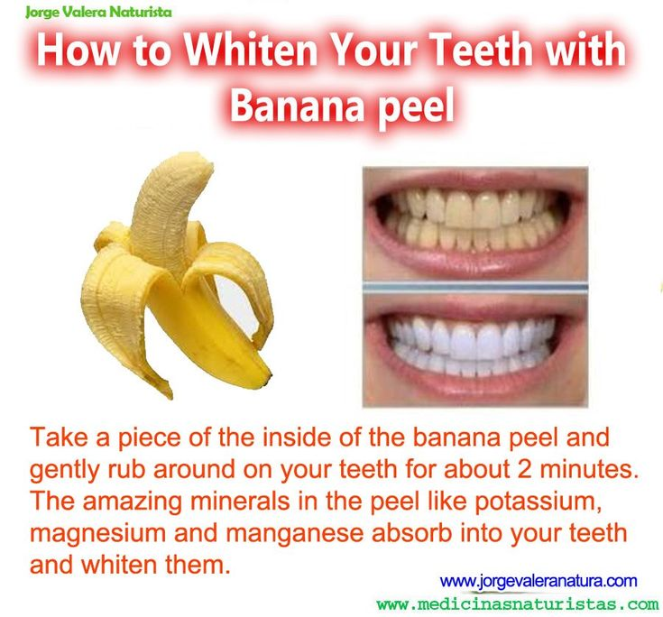 To whiten teeth with banana peel is very safe and healthy for teeth as banana peels are a wonderful source of minerals and vitamins. They do not have the abrasiveness that other natural whiteners have and best of all they are inexpensive.    Brush your teeth as usual with a natural toothpaste or you can use the banana peel first and then brush.    Take a piece of the inside of the banana peel and gently rub around on your teeth for about 2 minutes.