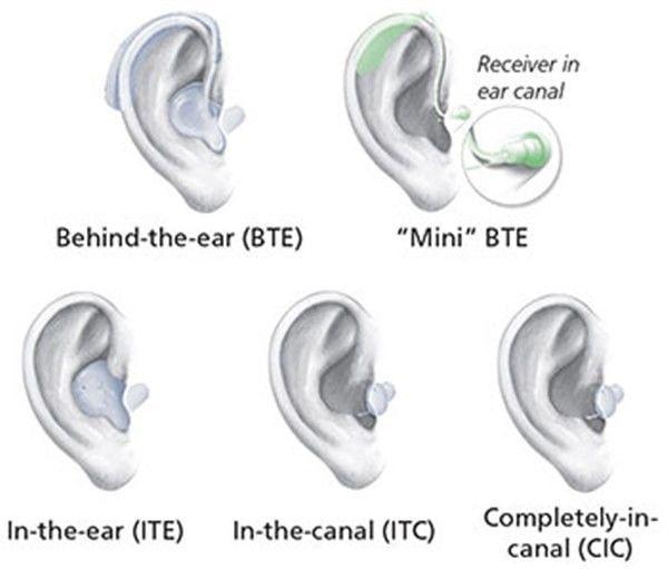 Pin On Ear Guru