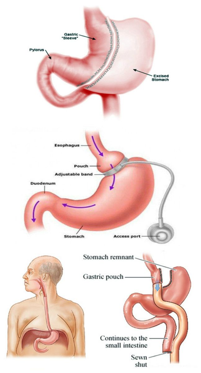 285 Best Gastric Sleeve Images On Pinterest Bariatric
