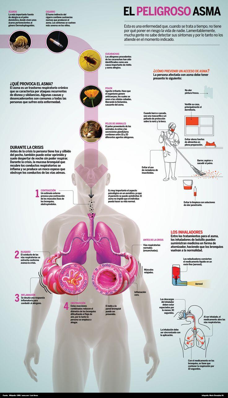 El #asma es una enfermedad que afecta los pulmones. Es una de las enfermedades de duración prolongada más comunes en los niños, aunque los adultos también pueden padecerla. El asma causa sibilancias...
