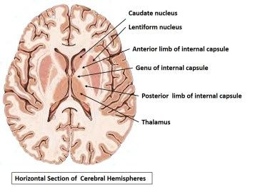 Internal capsule - The internal capsule is a white matter structure situated in the inferomedial part of each cerebral hemisphere of the brain. It carries information past the basal ganglia, separating the caudate nucleus and the thalamus from the putamen and the globus pallidus.