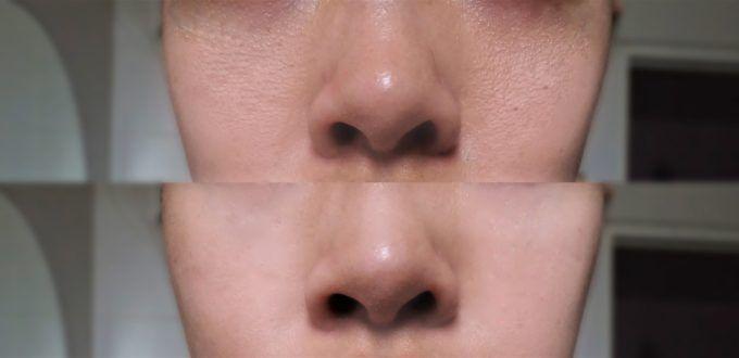 Feinere Poren: Diese Naturheilmittel sind Gold wert und kosten fast nichts