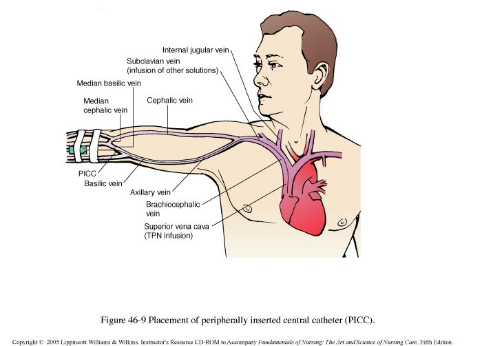 PICC LINE VEIN PLACEMENT SITES | These pictures were sourced from Connection (LWW)