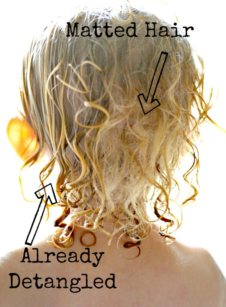 Matted Hair {Before & After} | ALLterNATIVElearning