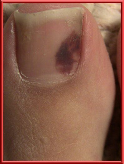 3 Common Toenail Problems: Toenail Trauma