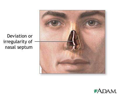 Deviated nasal septum – treatment