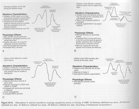 IABP Waveform Interpretation | Arterial Line Waveform Interpretation