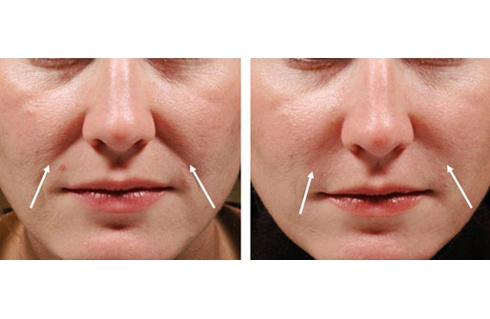 1000 Images About Dermal Fillers On Pinterest Before