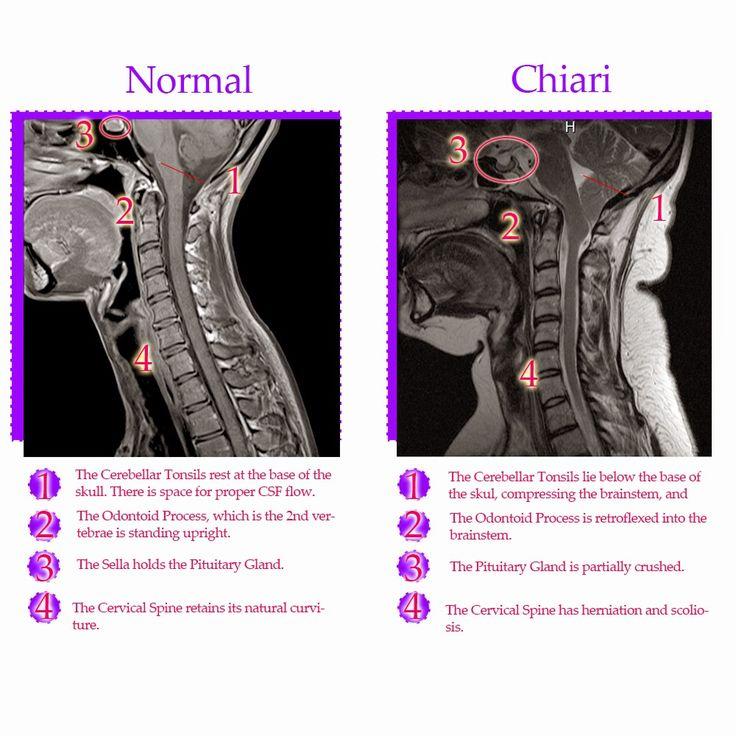 normal brain mri vs retroflexed odontoid - Google Search ...