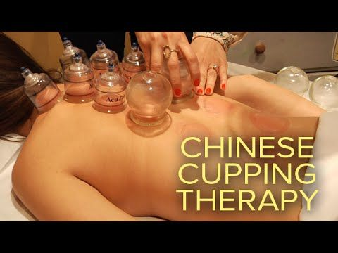 What Are All Those Red Spots? Traditional Chinese Cupping Therapy Provides Pain Relief And Reduces Muscle Aches