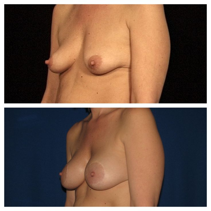 da beauty lift breasts mastopexy.