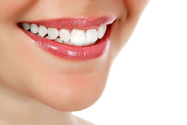 Two laser teeth whitening treatments for £109, Camden