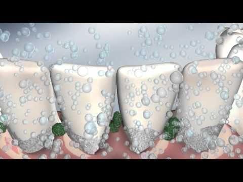 Zahnpflege mit echtem Ultraschall - Nie mehr Angst vor dem Zahnarzt