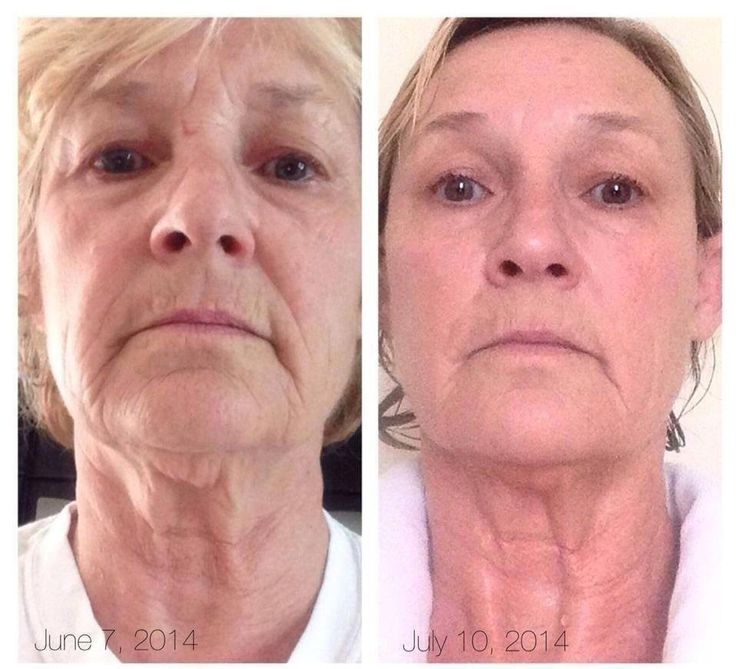 Check out these AMAZING Results after just ONE MONTH using Rodan + Fields REDEFINE Age Assault! Combat the visible signs of aging with R+F....CLINICALLY PROVEN to give Father Time a run for his money! http://debbiedreamskin.myrandf.com DebbieDreamSkin@gmail.com