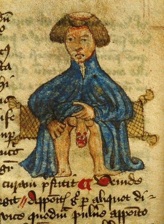 Serious problem  John Arderne, Liber Medicinarum, England 15th century (British Library, Sloane 56, fol. 85v). Discarding images.