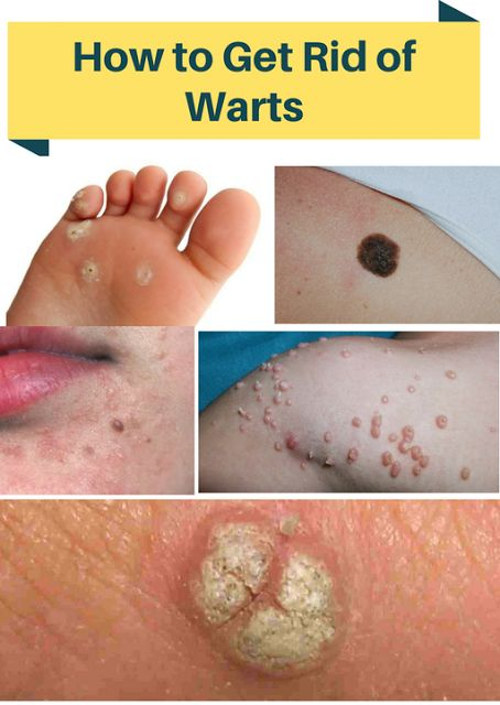 The Causes of Warts:  Warts are caused by a single virus, of  which there is many strains. Th...