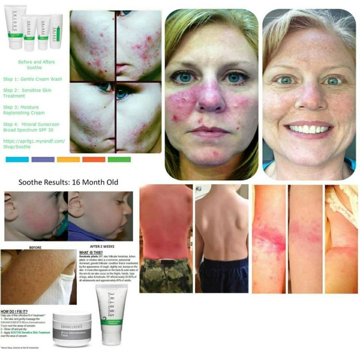 Soothe works incredible on all ages! I love how it takes the redness from my face just after I apply!