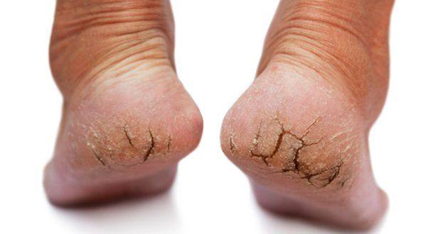 Dans cet article, découvrez une astuce naturelle pour vous débarrasser des talons crevassés.
