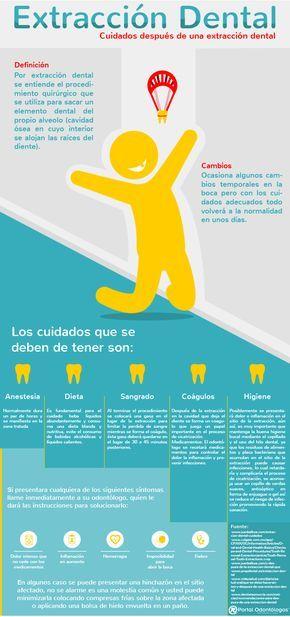 Extracción Dental