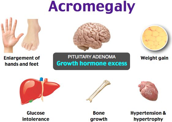 a study of acromegaly disease Perspective alzheimer's disease in et al predictors of tumor shrinkage after primary therapy with somatostatin analogues in acromegaly: a prospective study.