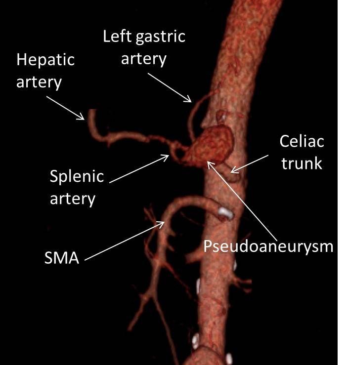 8 besten CT Anatomy Bilder auf Pinterest | Anatomie, Radiologie und ...