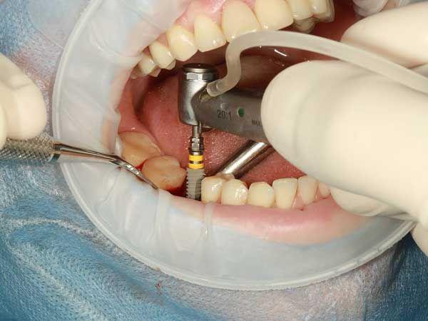 Upbeat Dental Implants Before And After Fractions Teethwhiteninglongisland Dentalimplantsdesign Implant Dentist Dental Implant Surgery Dental Implants
