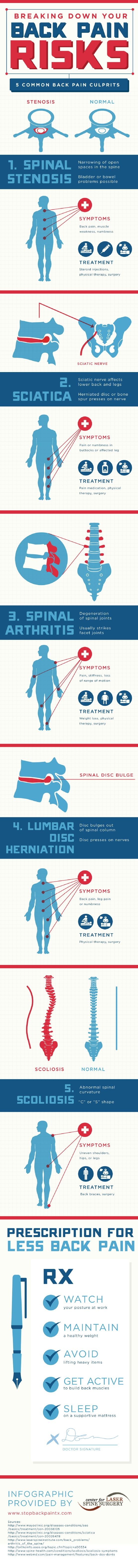 The sciatic nerve reaches all the way from the lower back to the bottom of the legs. If a herniated disc or bone spur presses on this nerve, it can cause sciatica. This infographic from Center for Laser Spine Surgery has more information.