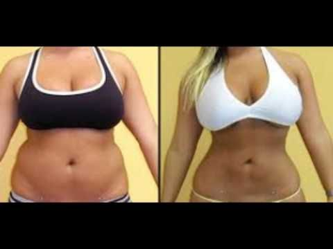 Des Moines Liposuction Before and After 425-529-5085 youtu.be/-sKr2GwjPbk