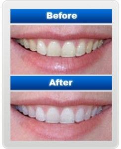 Over The Counter Teeth Whiteners