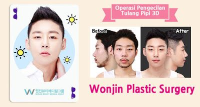 Wonjin Plastic Surgery Clinic Korea : Kekinian: Wajah Kecil & Ramping, Pengecilan Tulang...