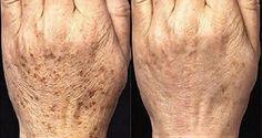 Normalmente, as manchas que aparecem com a idade localizam-se nos ombros, rosto, mãos e outras partes da pele, especialmente aquelas expostas ao sol.
