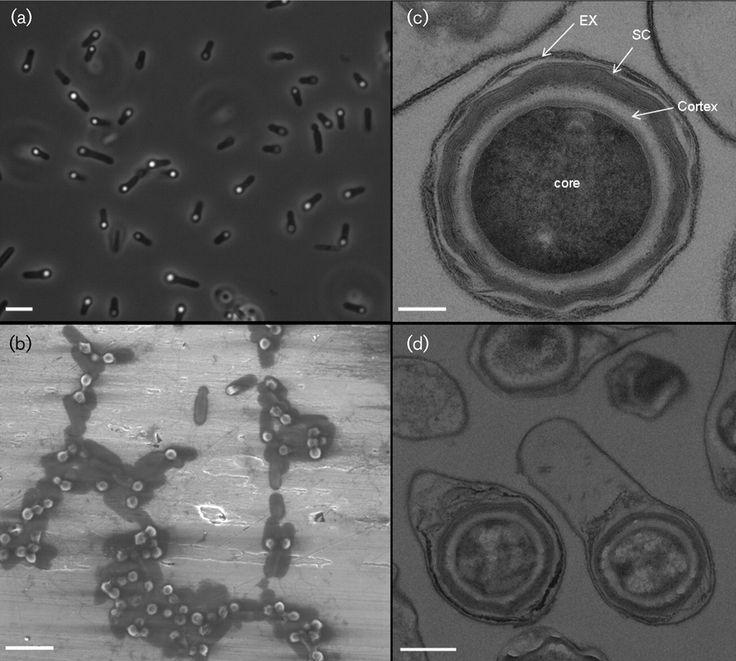 Rummeliibacillus stabekisii  [000.008.528]