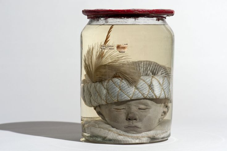 Frederik Ruysch (1638-1731), Baby Head with Turkish hat, ca 1720, prepared cobble, textiles and feathers, Bleulandinum Museum, University Medical Centre, Utrecht. (Photo: Museum Bleulandinum, University Medical Centre, Utrecht)