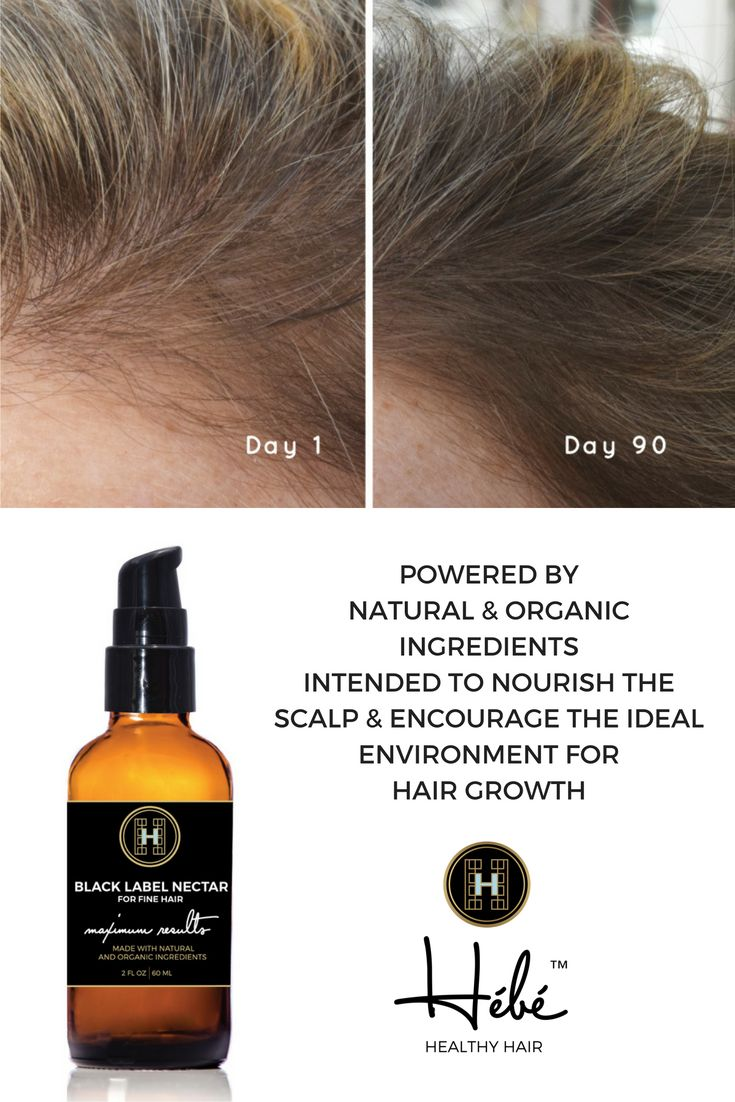 Hair Loss   Thin Hair   GROW   BLACK LABEL NECTAR   MAXIMUM RESULTS FOR FINE HAIR is intended to be applied at the root for those with fine to medium textured hair who have been experiencing hair thin