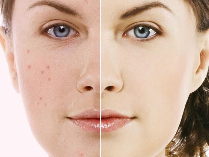 How to cure acne? 5 simple home remedies for acne . #acne #beauty #homeremedies