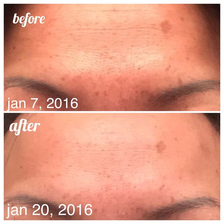 EEEKKKKK!!! I did it!!!  That's my forehead and I am amazed!  R+F Reverse/ AMP Roller and Macro Exfoliator!!!