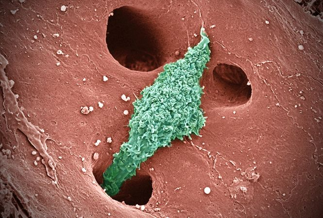 """""""The Lone Ranger""""- Kupffer cell (specialized macrophage, green) patrolling the tiny vessels in the liver called sinusoids, where they recycle old red blood cells and ingest pathogens. The endothelium (reddish pink) of these vessels has large holes, allowing the Kupffer cells to migrate into the liver tissue at sites of damage and inflammation."""