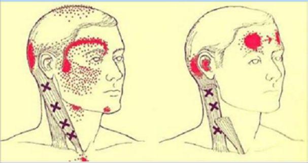 Jak zastavit migrénu okamžitě a s pomocí přírodní látky?