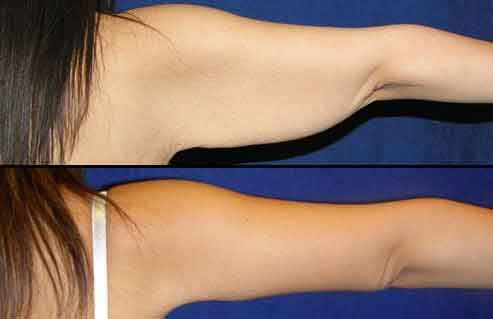 Arm liposuction results 5 – Liposuction before and after