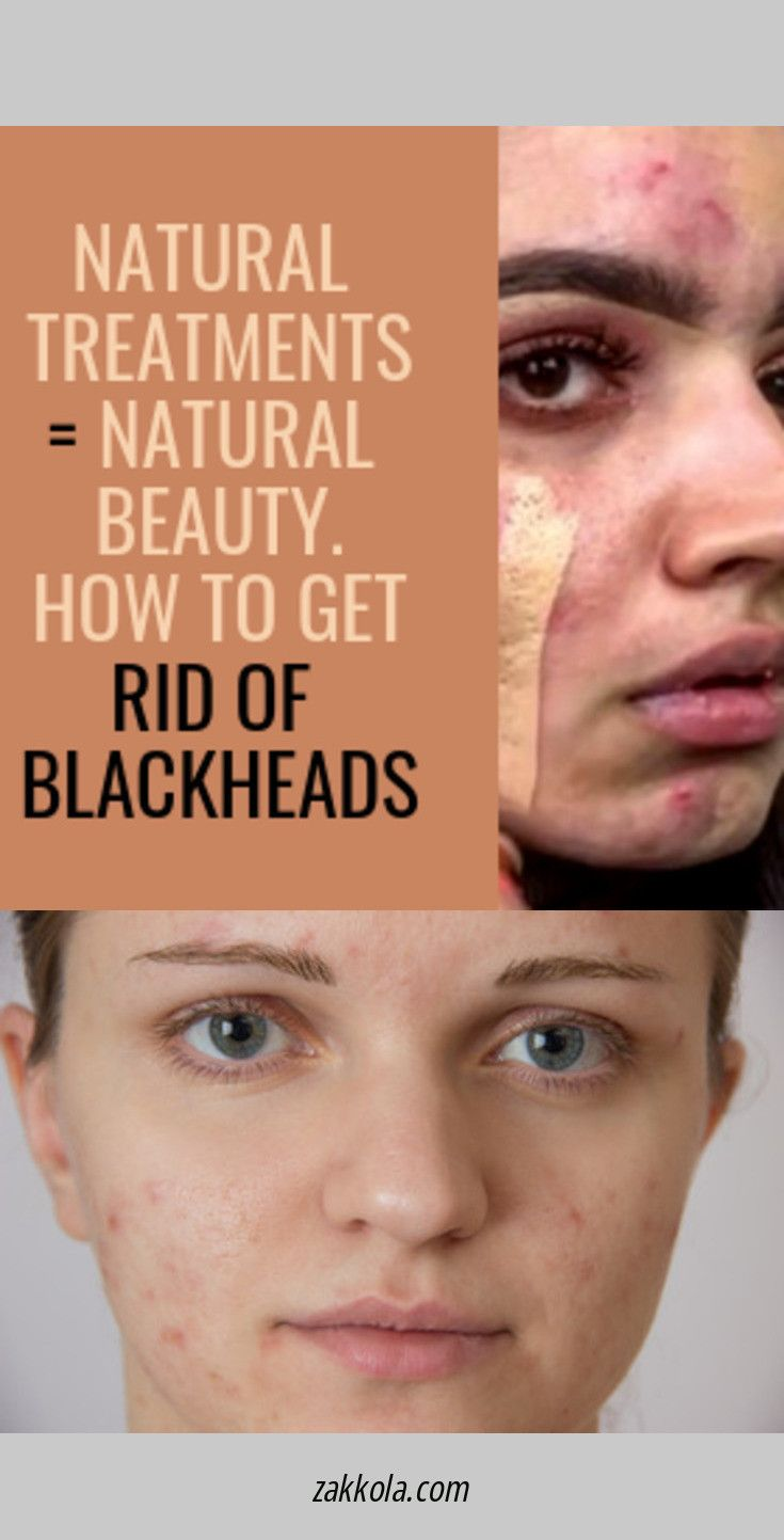 Look At The Webpage To Read More About Acne Check The Webpage To Get More Information Acne Treatment Back Acne Treatment Diy Acne Treatment