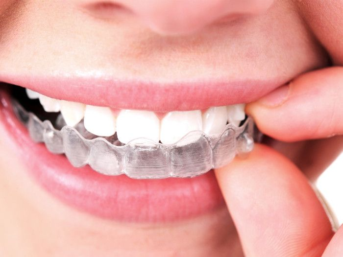 Fort Lauderdale Affordable Braces frequently get asked: How will Invisalign affect my life?
