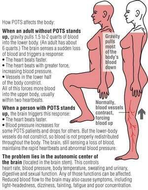 Postural tachycardia syndrome) is a condition of dysautonomia. Ehlers Danlos Syndrome #EhlersDanlos #EDS